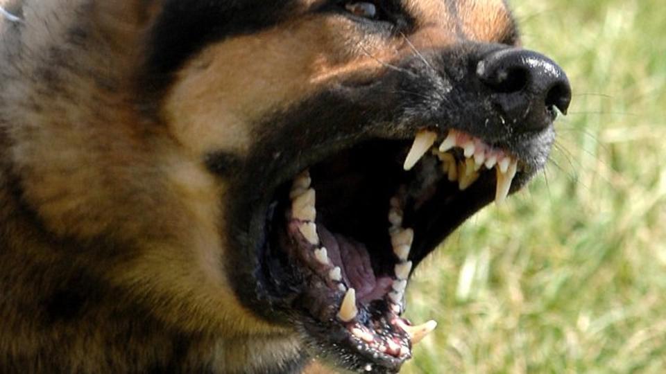 девочка подверглась нападению собаки